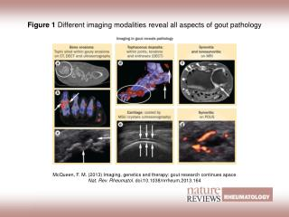 Figure 1  Different imaging modalities reveal all aspects of gout pathology