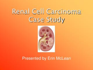 Renal Cell Carcinoma Case Study