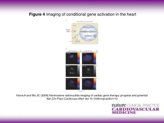 Figure 4  Imaging of conditional gene activation in the heart