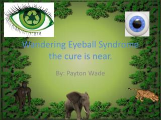 Wandering Eyeball Syndrome  the cure is near.