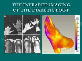 THE INFRARED IMAGING     OF THE DIABETIC FOOT