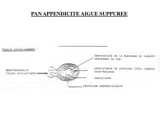 PAN APPENDICITE AIGUE SUPPUREE