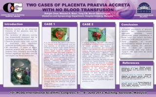 Placenta  accreta  is an abnormal invasion of the placenta into the  myometrium .