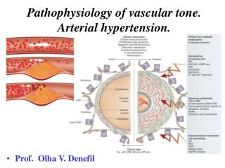 Pathophysiology of vascular tone. Arterial hypertension.