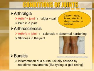 CONDITIONS OF JOINTS