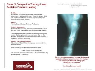 Class IV Companion Therapy Laser              Pediatric  Fracture Healing