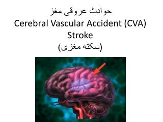 حوادث عروقی مغز Cerebral  V ascular Accident ( CVA ) Stroke ) سکته مغزی)