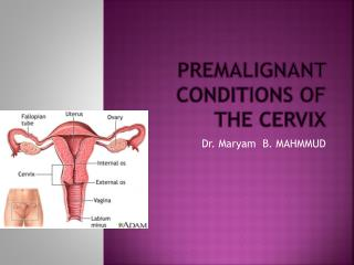 Premalignant conditions of the cervix