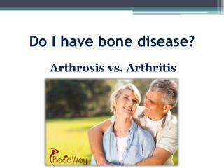 Arthrosis vs. Arthritis