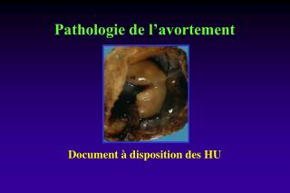 Pathologie de l'avortement
