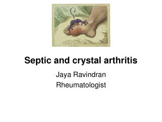 Septic and crystal arthritis