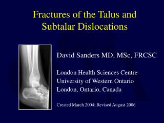 Fractures of the Talus and Subtalar Dislocations