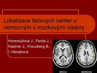 Lokalizace řečových center u nemocným s mozkovými nádory