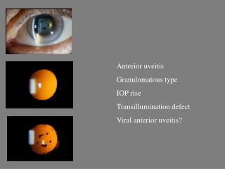 Anterior uveitis Granulomatous type IOP rise Transillumination defect Viral anterior uveitis?