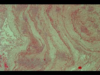 Microscopic findings in fistulae