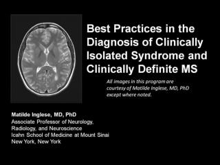 Best Practices in the Diagnosis of Clinically Isolated Syndrome and Clinically Definite MS