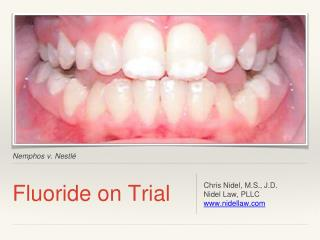 Fluoride on Trial