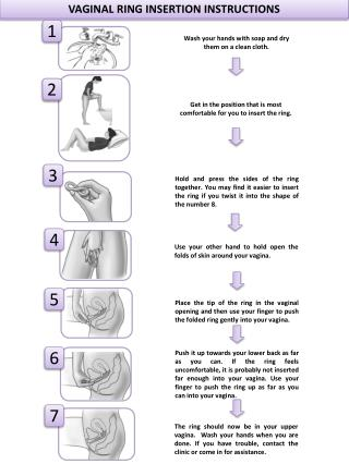 VAGINAL RING INSERTION INSTRUCTIONS