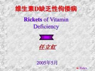 维生素 D 缺乏性佝偻病 Rickets  of Vitamin Deficiency