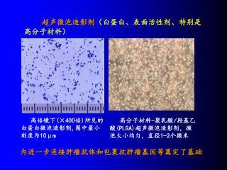 超声微泡造影剂 (白蛋白、表面活性剂、特别是高分子材料)