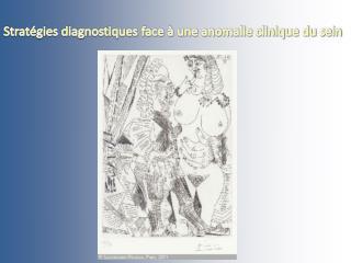 Stratégies diagnostiques face à une anomalie clinique du sein