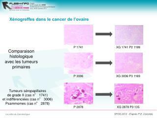 Xénogreffes dans le cancer de l'ovaire