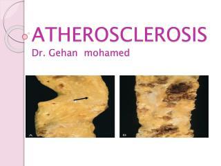 ATHEROSCLEROSIS Dr. Gehan mohamed