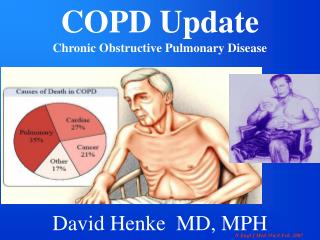 COPD Update Chronic Obstructive Pulmonary Disease