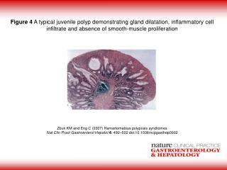 Zbuk KM and Eng C (2007) Hamartomatous polyposis syndromes