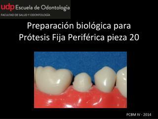 Preparación biológica para Prótesis Fija Periférica pieza 20