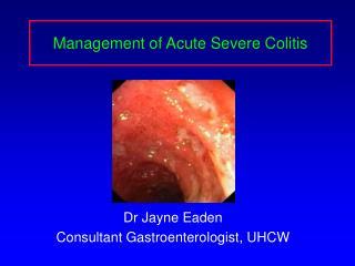 Management of Acute Severe Colitis