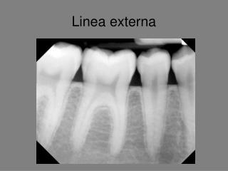 Linea externa