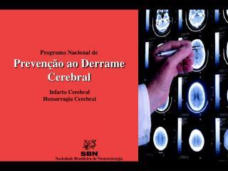 Programa Nacional de Prevenção ao Derrame Cerebral