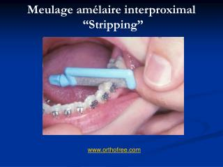"""Meulage amélaire interproximal  """"Stripping"""""""