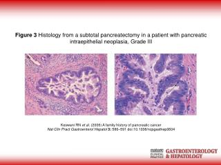Keswani RN et al. (2006) A family history of pancreatic cancer