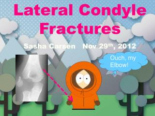 Lateral Condyle Fractures Sasha Carsen   Nov 29 th , 2012