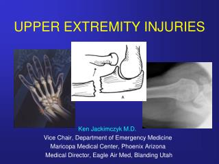 UPPER EXTREMITY INJURIES