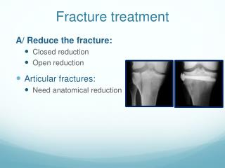 Fracture treatment