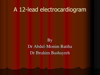 A 12-lead electrocardiogram