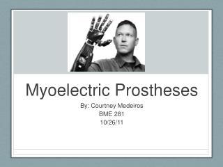 Myoelectric Prostheses