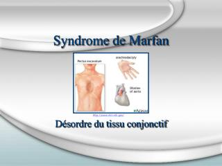 Syndrome de Marfan