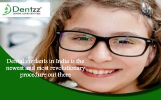 Dental implants in India is the newest and most revolutionar
