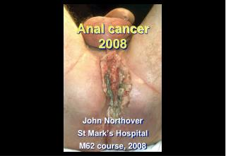 Anal cancer 2008