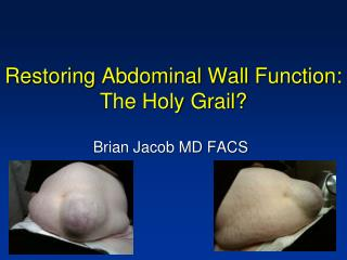 Restoring Abdominal Wall Function: The Holy Grail?