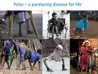 Polio – a paralysing disease for life