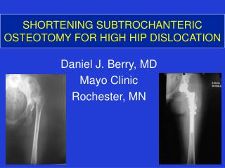 SHORTENING SUBTROCHANTERIC OSTEOTOMY FOR HIGH HIP DISLOCATION