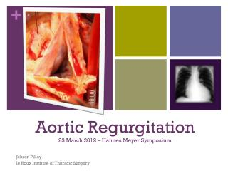 Aortic Regurgitation 23 March 2012 –  Hannes  Meyer Symposium