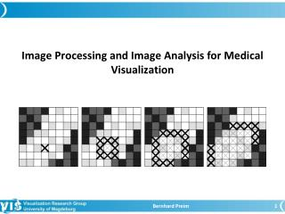 Image Processing and Image Analysis f o r Medical Visualization