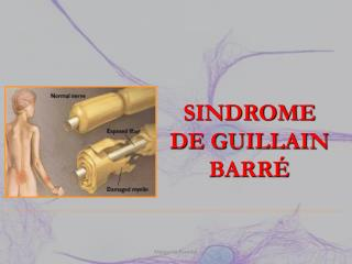 SINDROME DE GUILLAIN BARRÉ
