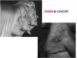 AGING  &  CANCER